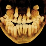 Impacted Canines