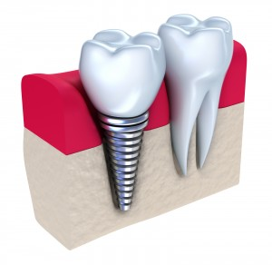 bigstock-Dental-implant-21445361