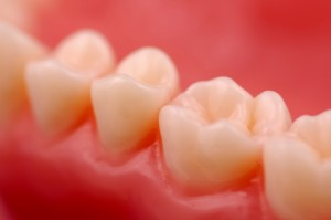 Inflamed teeth