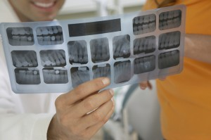 Dentist holding tooth x-ray report of patient