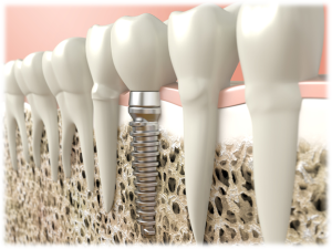 Dental Implants Edited