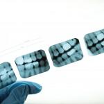Dental Bitewing X-rays