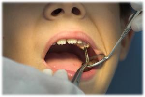 Young boy at dentist